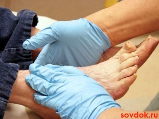 руки в перчатках и ноги