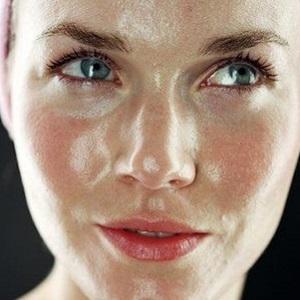 сальная кожа