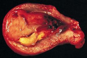 Стромальная саркома