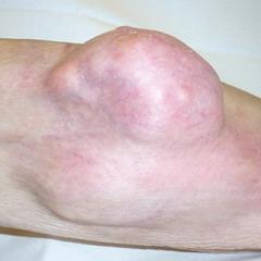 Синовиальная саркома коленного сустава
