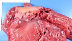 Септическое поражение сердечных клапанов
