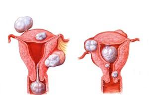 Схематичное изображение фибром на теле матки