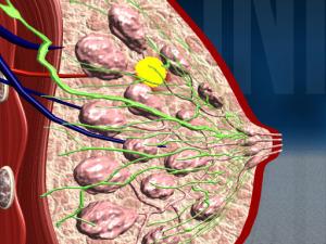 Схематичное фото фибромы в области молочной железы
