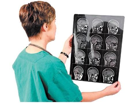 Виды отека головного мозга