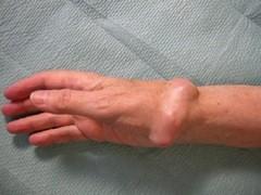 Симптомы рака кости руки