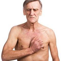 Симптомы рака крови у взрослых