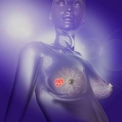 Методы диагностики рака груди