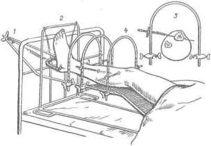 Cистема скелетного вытяжения при лечении множественных переломов костей голени (по В. В. Ключевскому).