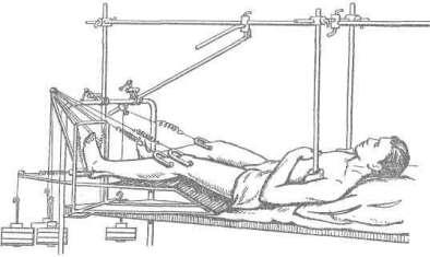 Система скелетного вытяжения большими грузами при сочетании переломов таза и позвоночника