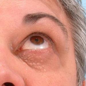 скопление жировиков под глазом