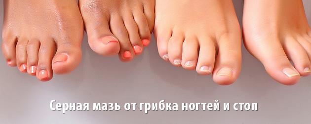 Цинковая мазь грибок ногтей