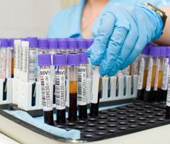 СОЭ в расшифровке анализа крови