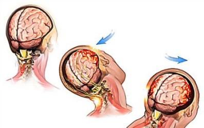 как проявляется сотрясение мозга