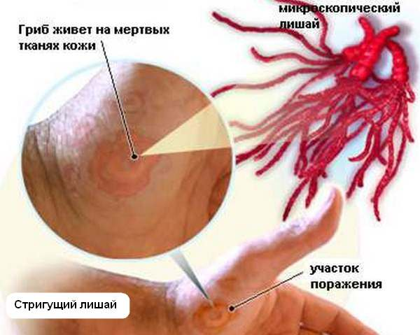 причины болезни