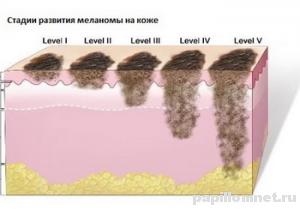 Фото стадий меланомы