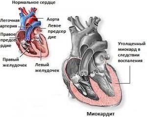 Острая стадия миокардита требует госпитализации в отделение кардиологии