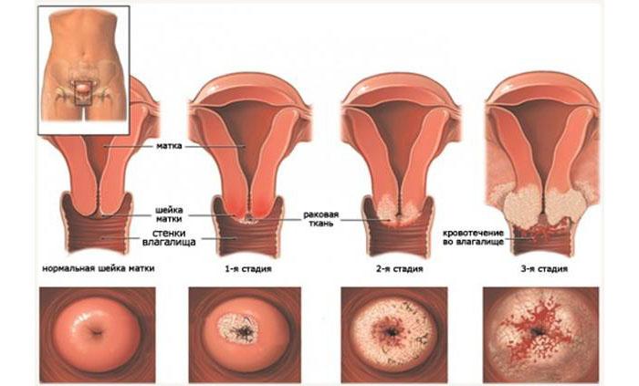 Четыре стадии рака шейки матки