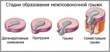 стадии образования межпозвоночной грыжи