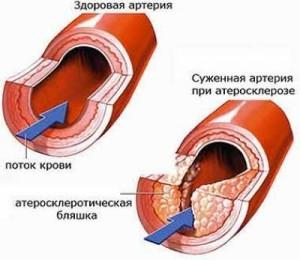степени атеросклероза