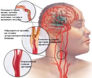 природа ишемического инсульта