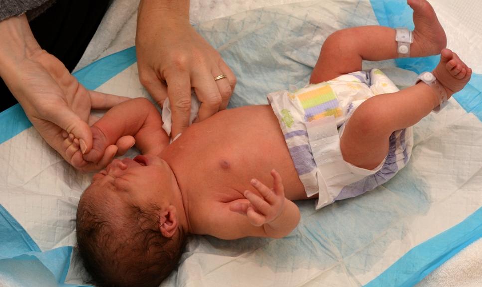 Сухая кожа у новорожденного: возможные причины