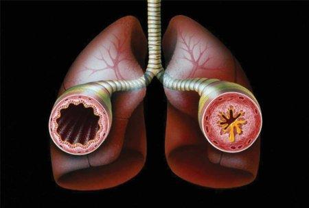 Экзогенная бронхиальная астма
