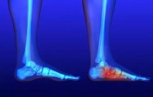 тендинит на ступнях