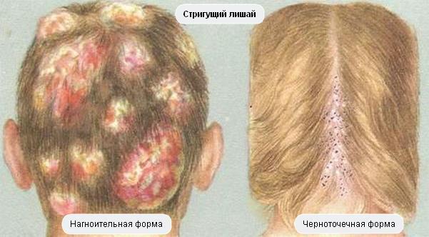 картинка трихофитии на голове