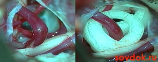 тройничный нерв - белый на фото