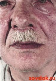 цианоз лица