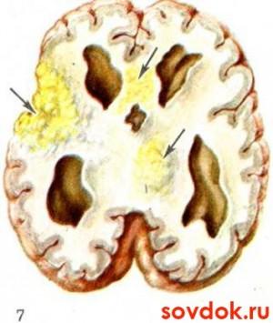 туберкулёзный менингит