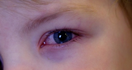 Почему у ребенка красные глаза: возможные причины