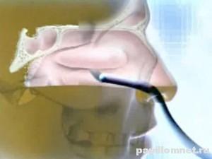 Фото носовой полости к статье об удалении и лечении полипов