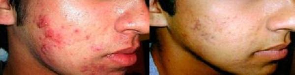 угревая сыпь на лице,фото