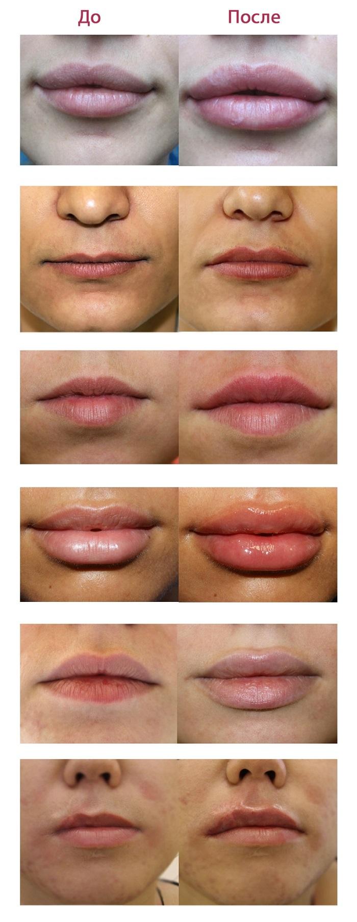 Эффект увлажнения губ