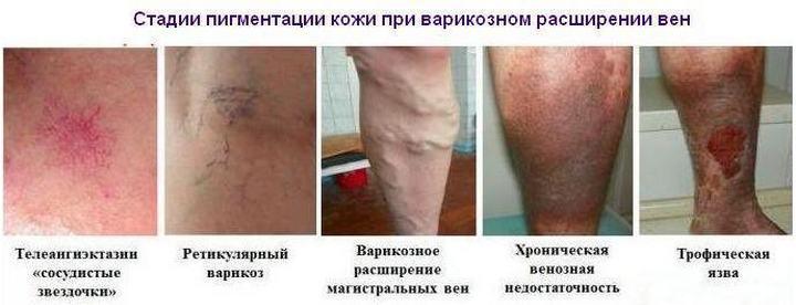 фото стадий варикоза ног
