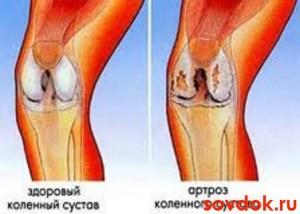 вид здорового сустава и сустава, поражённого артрозом