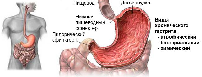 Особливості антрального гастриту і методи його лікування