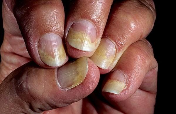 Види псоріазу та їх лікування