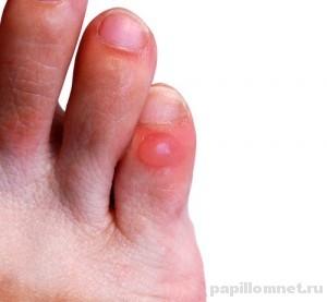 Фото пальца ноги на котором образовалась водяная мозоль