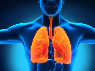 Воспаление лёгких.