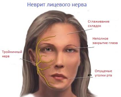 восполение тройничного нерва