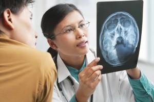 врач со снимком мозга