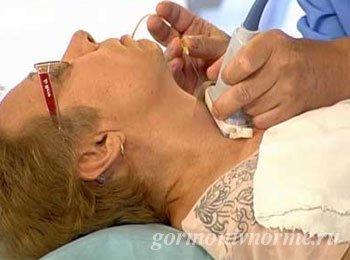 Эпидемия рака щитовидной железы. В чем причина?