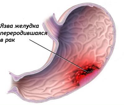 Язва переродившаяся в рак