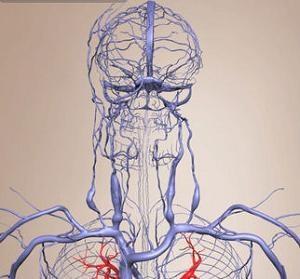 Затруднения венозного оттока головного мозга