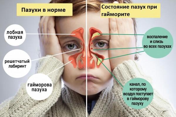 Здоровые и воспаленные гайморовы пазухи у ребёнка