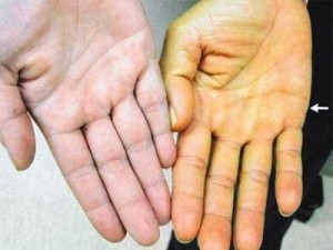 желтушность кожи рук