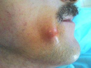Фотография жировика на лице человека