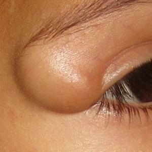 жировик над глазом